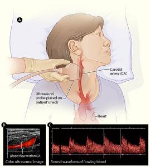 carotid_ultrasound-269x300
