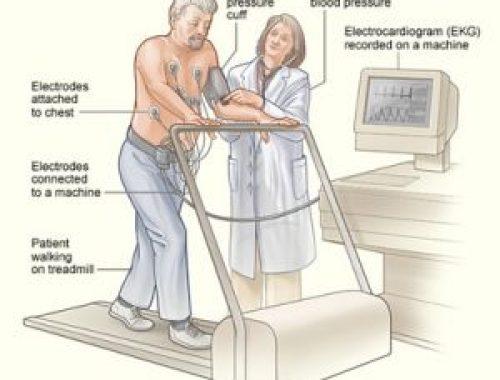 pic-treadmill-testing-1-300x255